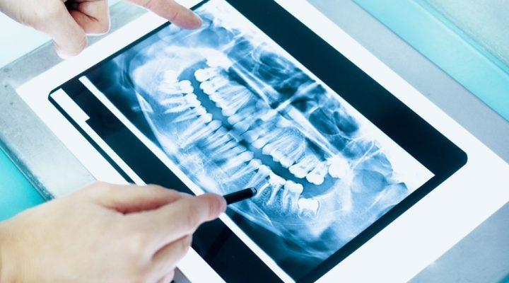 Impressão 3D: Entenda a tecnologia e sua aplicação na Odontologia